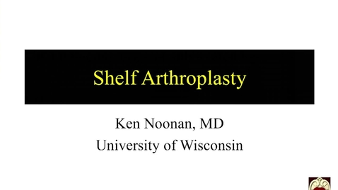 Thumbnail for entry Shelf Arthroplasty