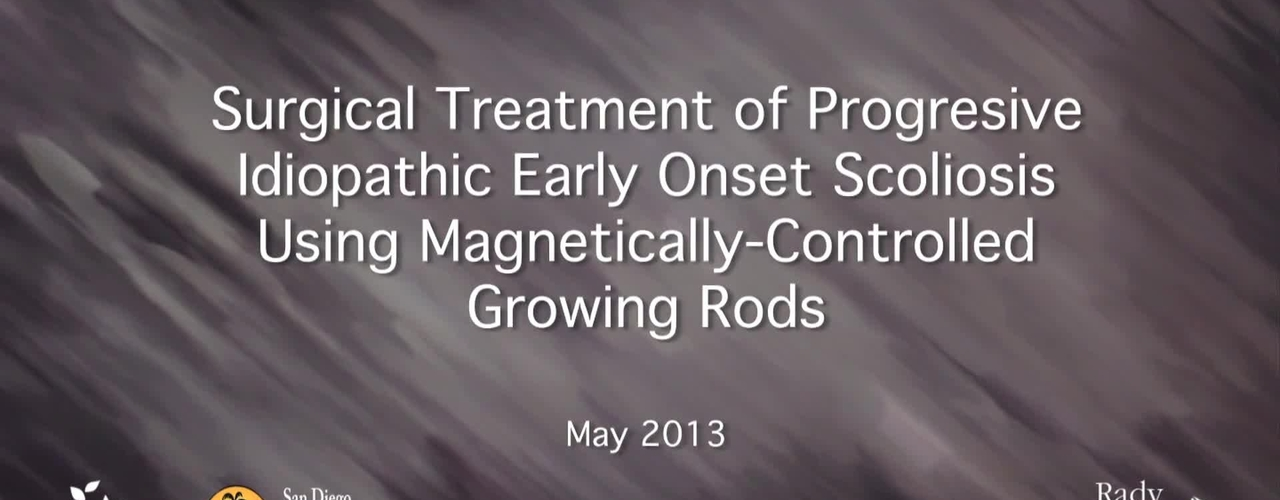 Magnetically-Controlled Growing Rods for the Treatment of Early Onset Scoliosis
