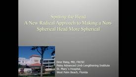 Thumbnail for entry Splitting the Head: A New Radical Approach to Making a Non-Spherical Head More Spherical