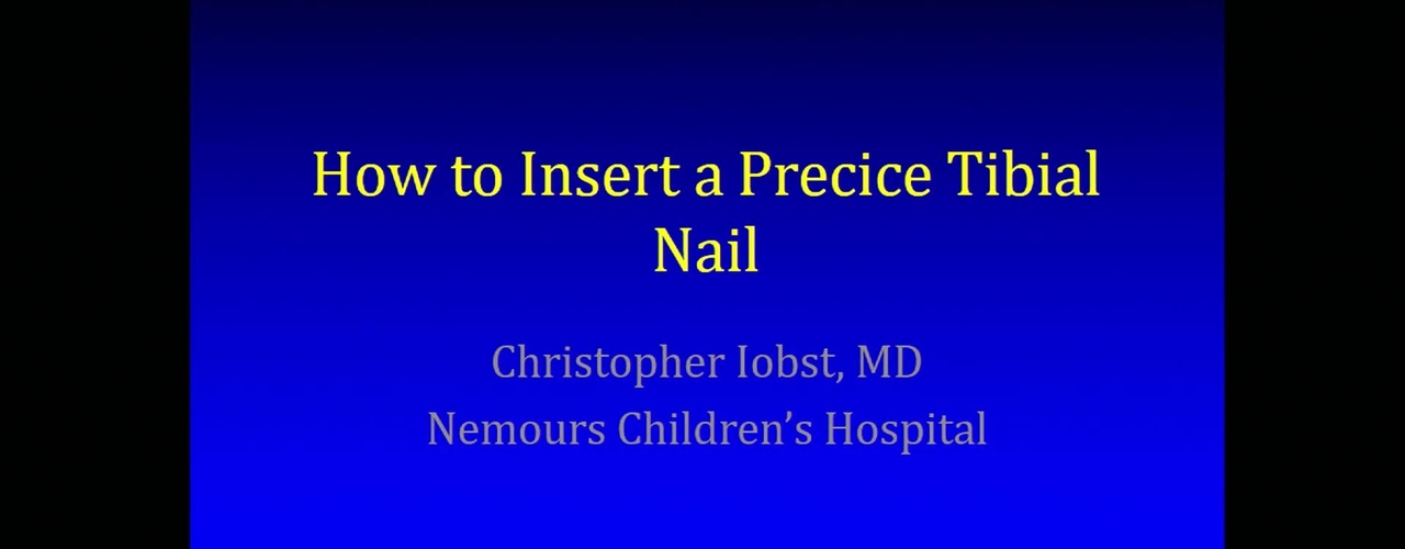 How to Insert a Precice Tibial Nail