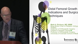 Thumbnail for entry Distal Femoral Growth Arrest: Indications and Surgical Techniques