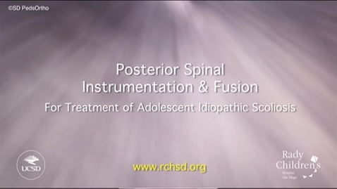 Thumbnail for entry Posterior Spinal Instrumentation and Fusion for Treatment of Adolescent Idiopathic Scoliosis