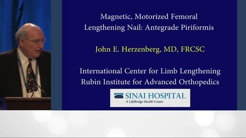 Thumbnail for entry Internal Lengthening Nail for the Femur