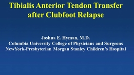 Thumbnail for entry Tibialis Anterior Tendon Transfer After Clubfoot Relapse