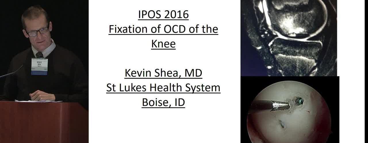 Fixation of OCD of the Knee