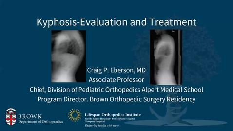 Thumbnail for entry Kyphosis: Evaluation and Treatment