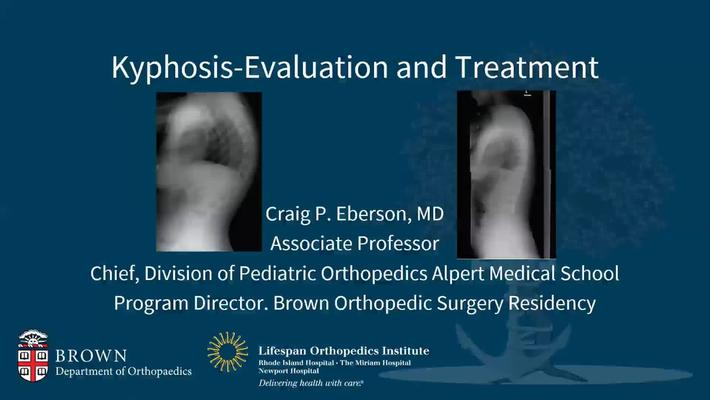 Kyphosis: Evaluation and Treatment