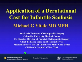 Application of a Derotational Cast for Infantile Scoliosis - POSNAcademy
