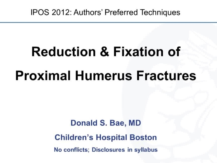 Reduction & Fixation of Proximal Humerus Fracture - POSNAcademy