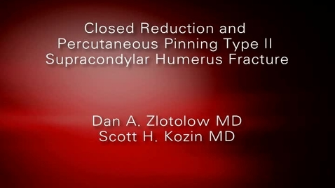Closed Reduction and Percutaneous Pinning Type II Supracondylar Humerus Fracture