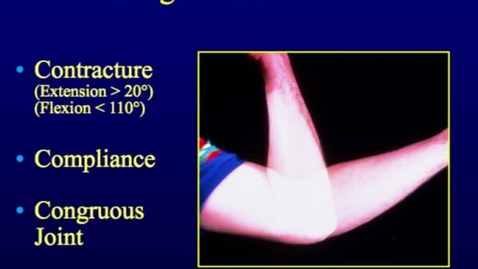 Thumbnail for entry Elbow Stiffness After Trauma