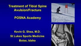 Thumbnail for entry Treatment of Tibial Spine Avulsions