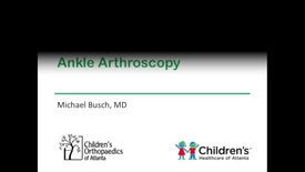 Thumbnail for entry Ankle Arthroscopy Techniques