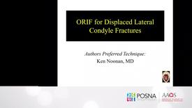Thumbnail for entry ORIF for Displaced Lateral Condyle Fractures