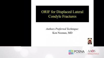 orif for displaced lateral condyle fractures posnacademy