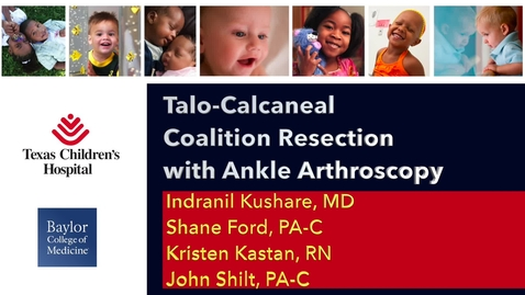 Thumbnail for entry Video Abstract 1: Talo-Calcaneal Coalition Resection with Ankle Arthroscopy
