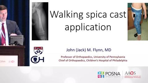 Thumbnail for entry Walking Spica Cast Application