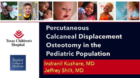 Thumbnail for entry Percutaneous Calcaneal Displacement Osteotomy in the Pediatric Population