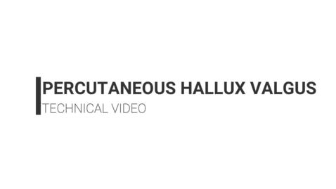 Thumbnail for entry Percutaneous Hallux Valgus Correction