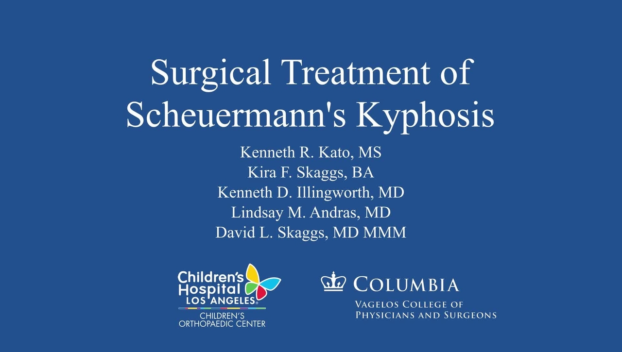 Surgical Treatment of Scheuermann's Kyphosis