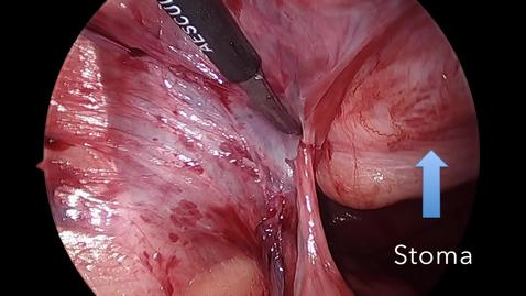 Thumbnail for entry Laparoscopic Parastomal Hernia Repair