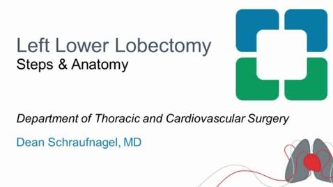 Thumbnail for entry Left Lower Lobectomy