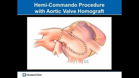 Thumbnail for entry Heart Surgery: Aortic Valve Prosthesis Endocarditis with Involvement in Mitral and Tricuspid Valve