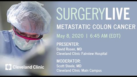 Thumbnail for entry Surgery Live: Metastatic Colon Cancer, May 8, 2020