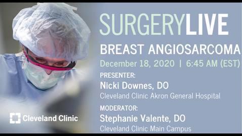 Thumbnail for entry Breast Angiosarcoma