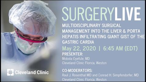 Thumbnail for entry Surgery Live: Multidisciplinary Surgical Management Into the Liver & Porta Hepatis Infiltrating Giant GIST of the Gastric Cardia, May 22, 2020