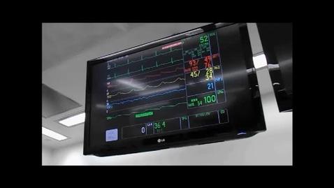 Thumbnail for entry Endovascular Radial Artery Harvesting
