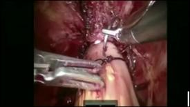 Thumbnail for entry Robotic-Assisted Radical Cystectomy with Intracorporeal Neobladder Formation