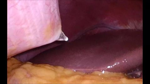 Thumbnail for entry Pure Laparoscopic Donor Hepatectomy