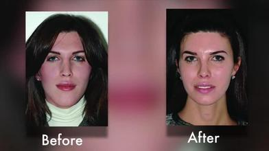 be2605252999e5 Video Gallery   Plastic and Reconstructive Surgery