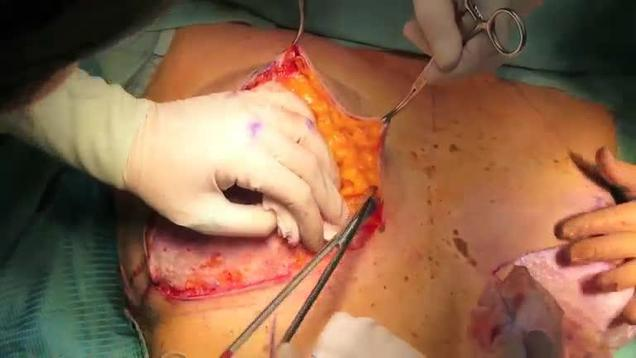 Breast reduction surgery videos