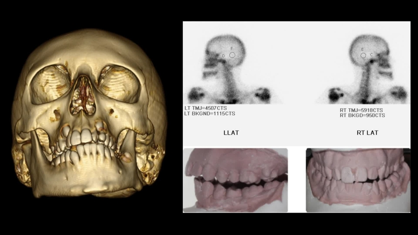 Component Facelift Approach To The Temporomandibular Joint Plastic And Reconstructive Surgery Global Open
