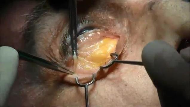 Video Gallery : Plastic and Reconstructive Surgery