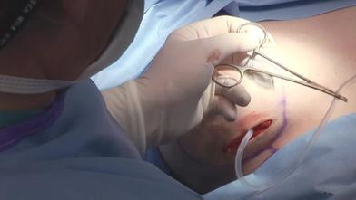 Breast video gallery