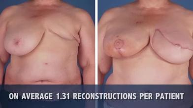 surgeon Breast reconstruction