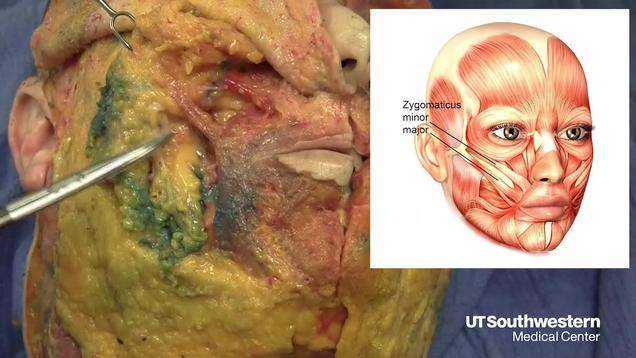 Video Gallery : Plastic and Reconstructive Surgery – Global Open