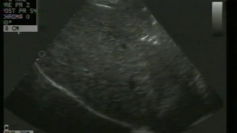 Thumbnail for entry Intestinal imaging: Clip 1