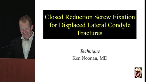 Thumbnail for entry Closed Reduction Screw Fixation for Displaced Lateral Condyle Fractures