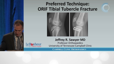 Thumbnail for entry ORIF of Tibial Tubercle Fracture