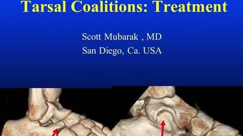 Thumbnail for entry Tarsal Coalitions: Treatment
