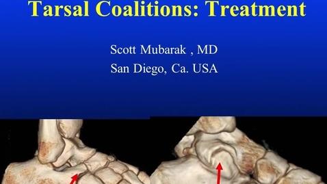 Thumbnail for entry Tarsal Coalitions: Treatment