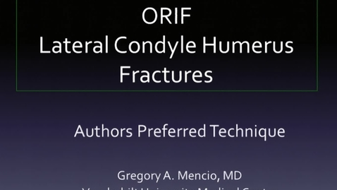 Thumbnail for entry ORIF Lateral Condyle Humerus Fracture