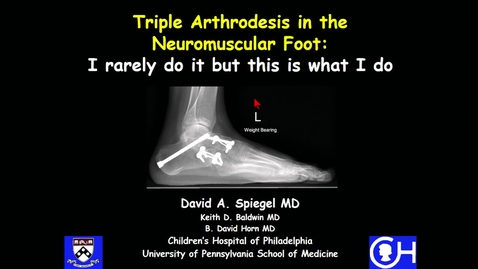 Thumbnail for entry Triple Arthrodesis in the Neuromuscular Foot