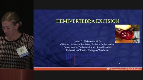 Thumbnail for entry Hemivertebra Excision