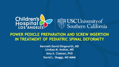 Thumbnail for entry Power Pedicle Preparation and Screw Insertion