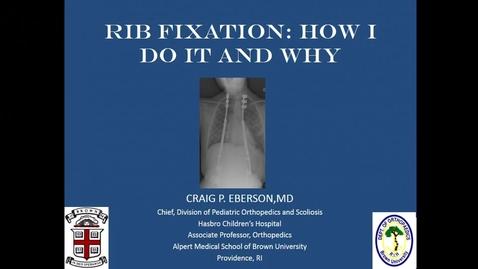 Thumbnail for entry Rib Fixation for EOS